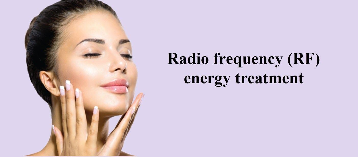Radio frequency (RF) energy treatment