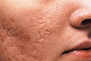 Atrophic scars and fotona lasers