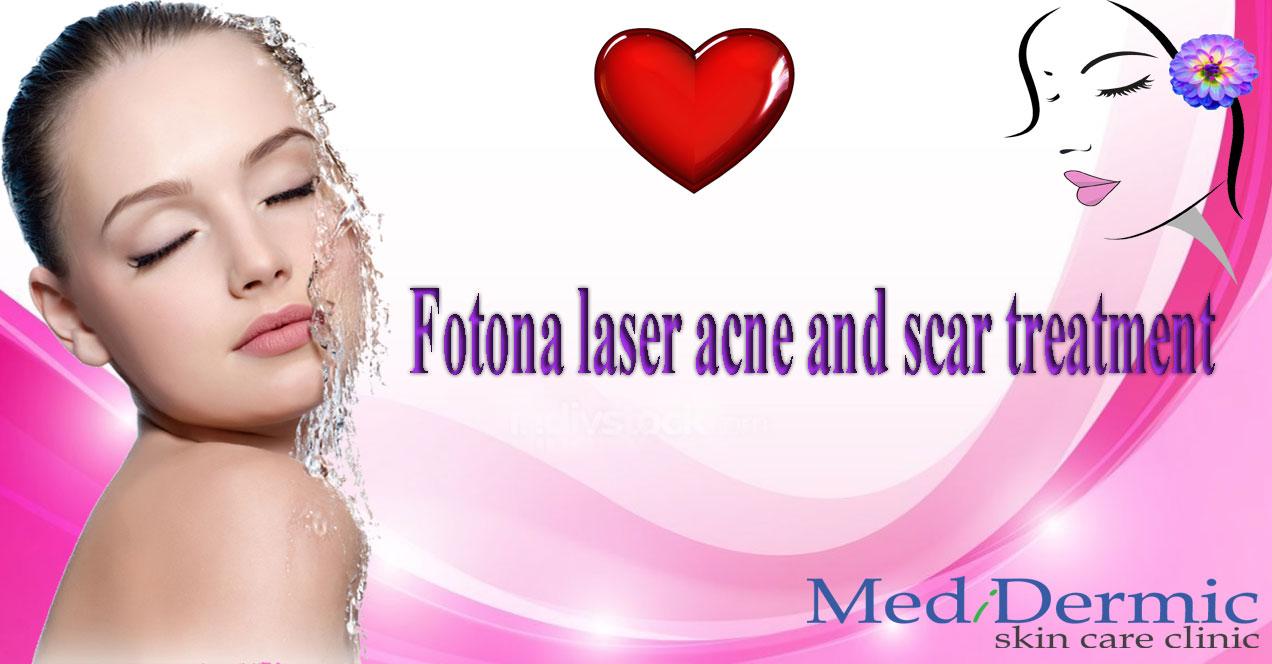 Fotona laser acne and scar treatment in medidermic