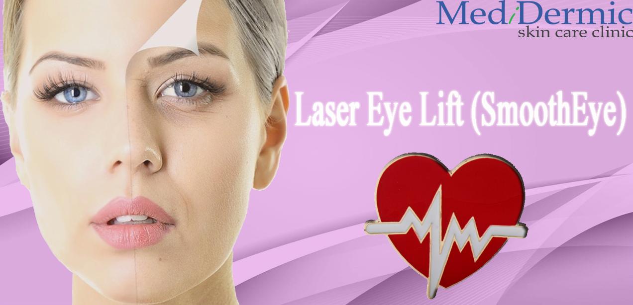 Laser eye lift in Australia