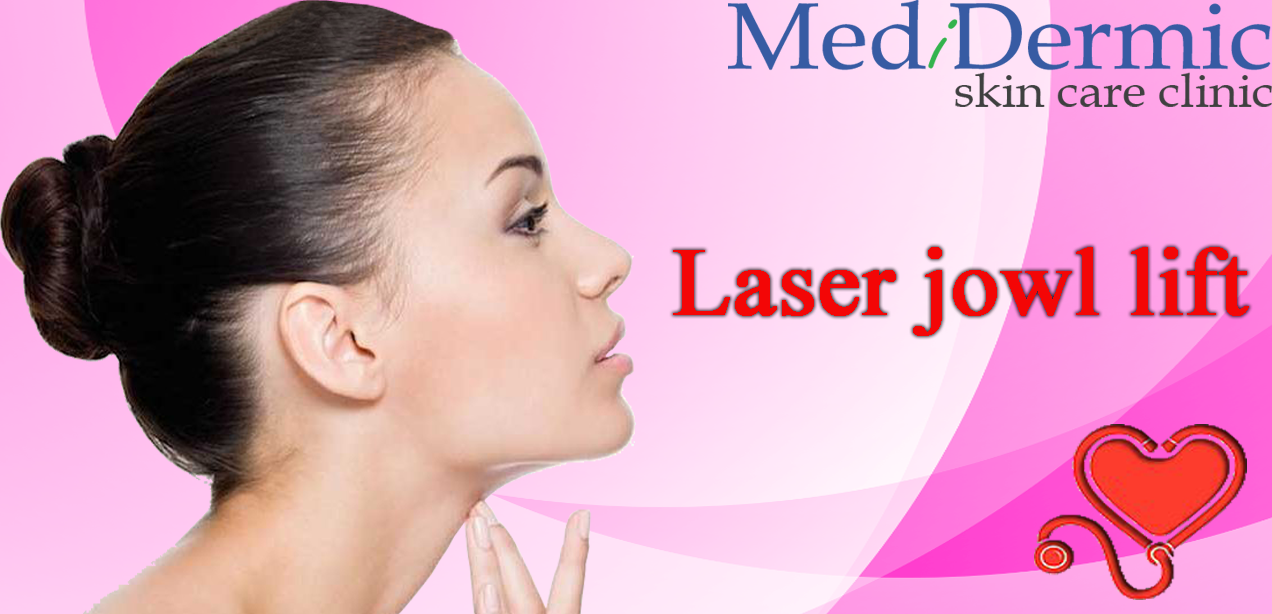 What is a laser jowl lift?