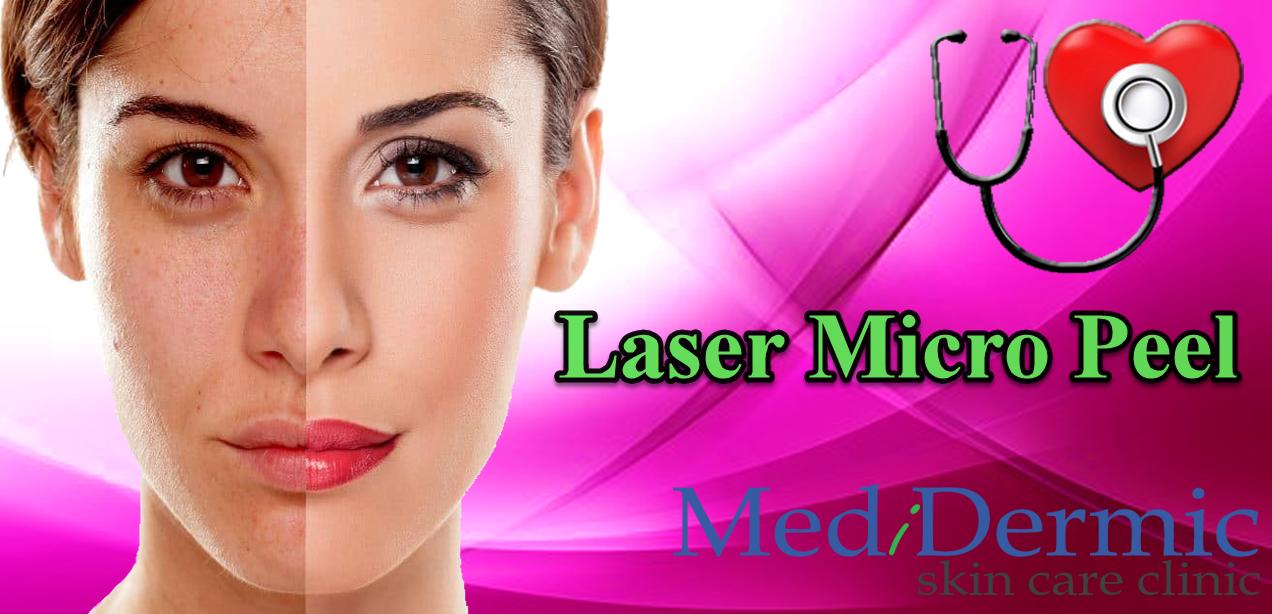 Laser micro peel in Australia