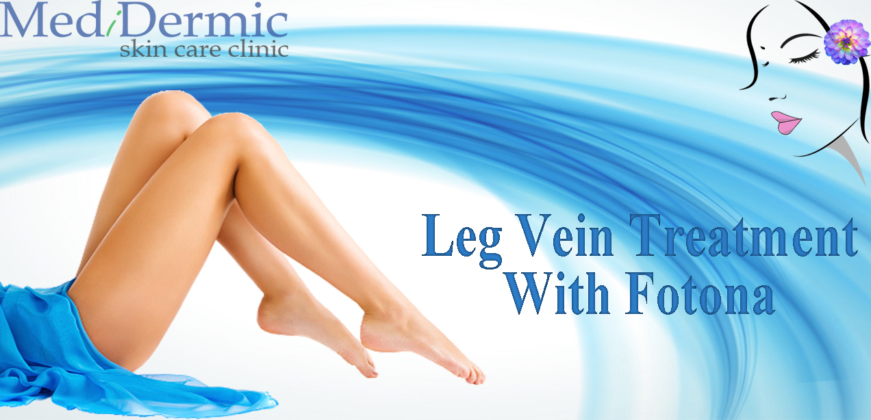 Leg vein treatment with fotona in Australia