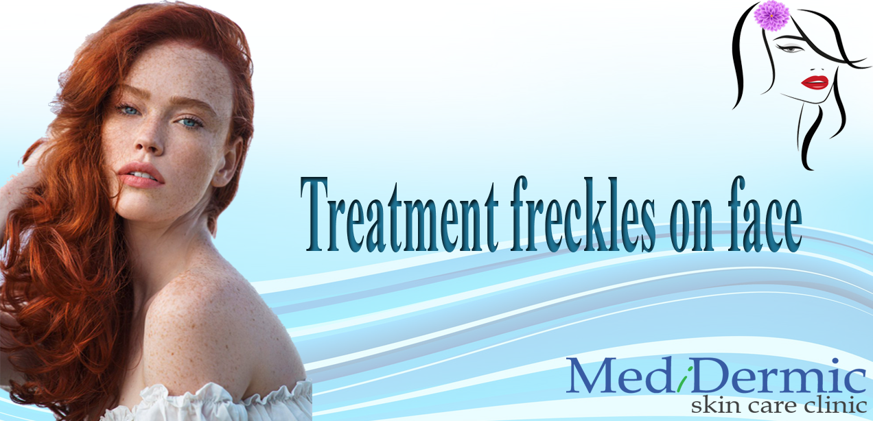 Treatment freckles on face